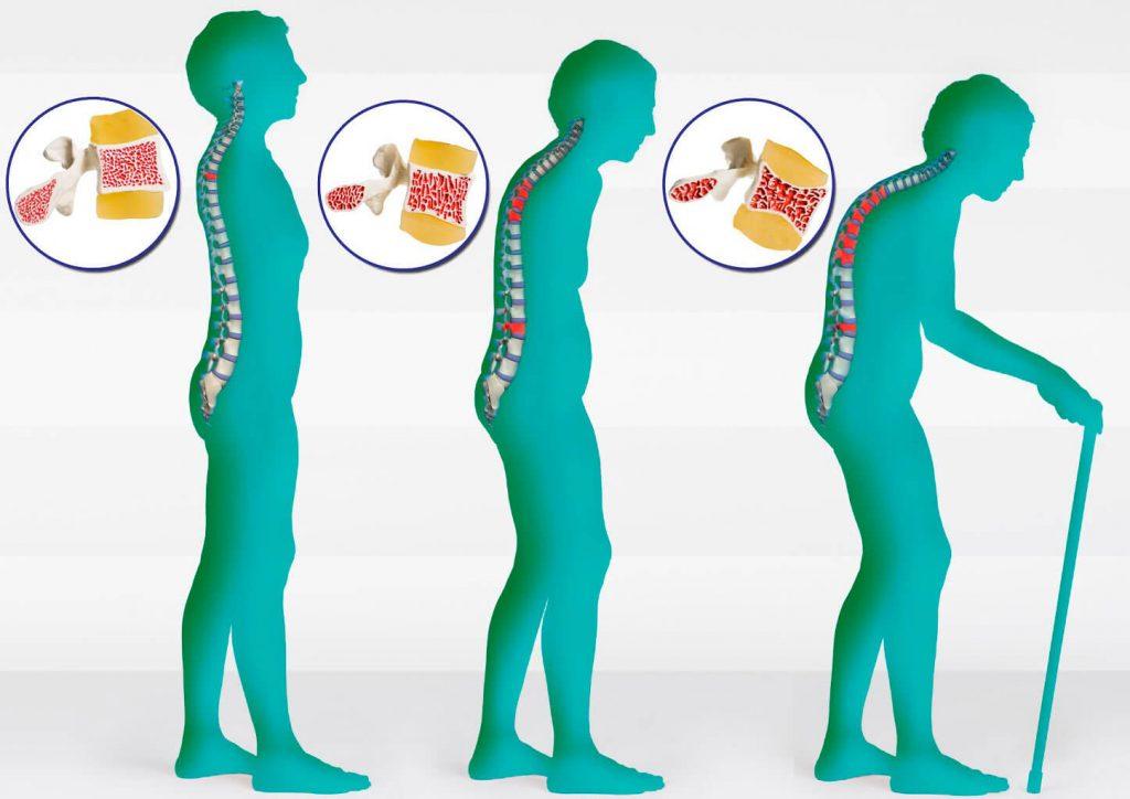 Етапи на развитие на остеопорозата