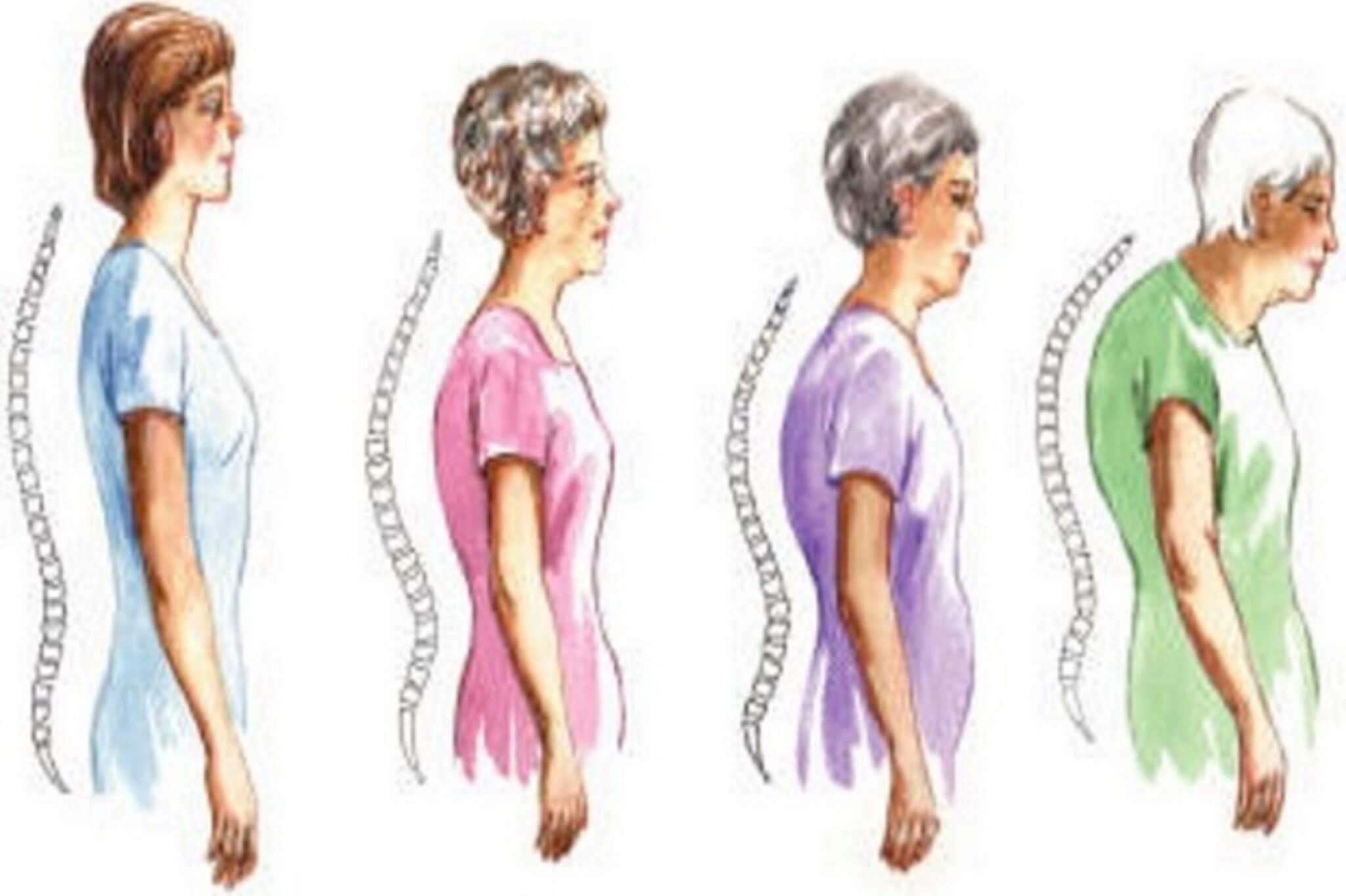 Шест признака на остеопороза